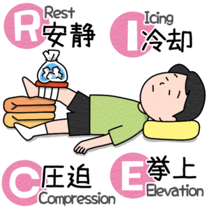 RICE処置を受ける人のイラスト