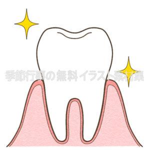歯周病進行のイラスト