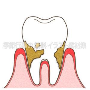 歯周病中程度のイラスト