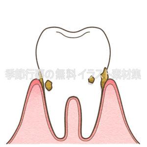 歯周病軽度のイラスト