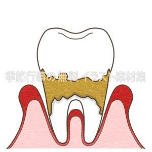 歯周病重度のイラスト